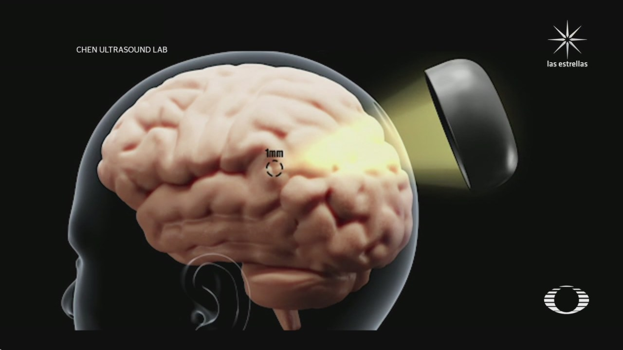 crean equipo que reactiva y desarrolla neuronas
