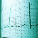 Tener Relaciones Sexuales Infarto Electrocardiograma