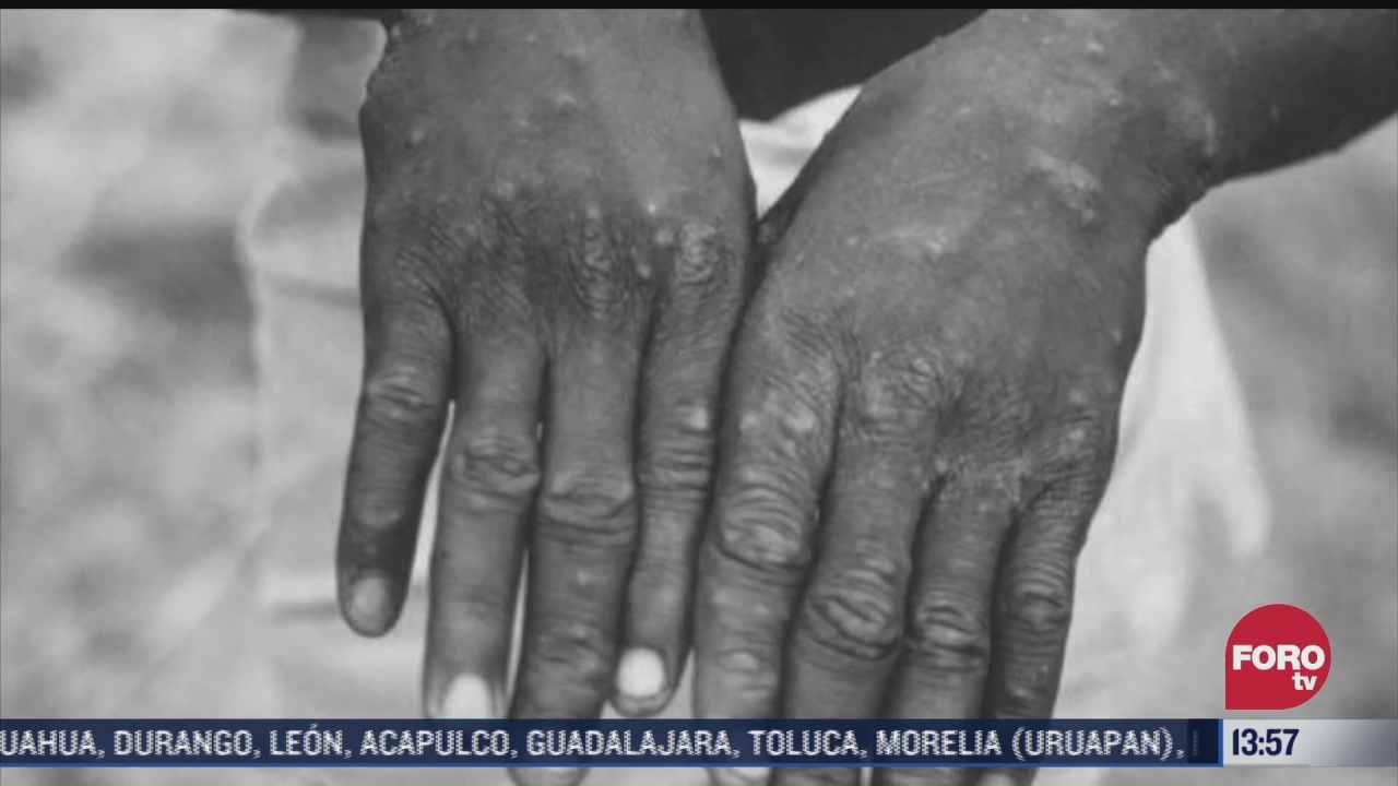 detectan en eeuu primer caso en humanos de la viruela del mono