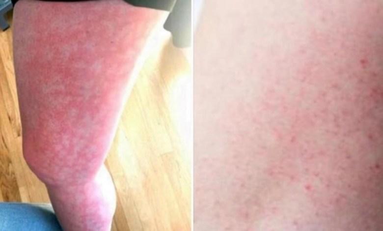 Photo of Extraño sarpullido podría ser nuevo síntoma de COVID-19