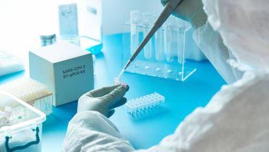 Photo of La Anmat aprobó el primer test PCR argentino para detectar coronavirus