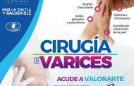 Ofrece Ayuntamiento de Tuxtla Gutiérrez campaña de valoración y tratamiento de varices