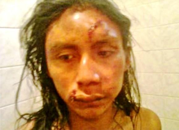 Abelardo Díaz, golpeado brutalmente