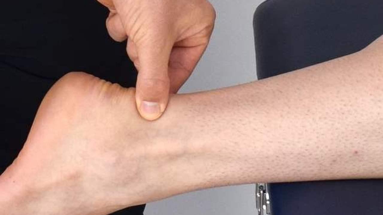 Spessore del tendine di Achille collegato al rischio di malattie  coronariche secondo studio – Notizie scientifiche.it