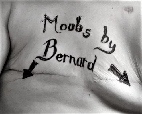 Moobs by Bernard mastectomy flat denial