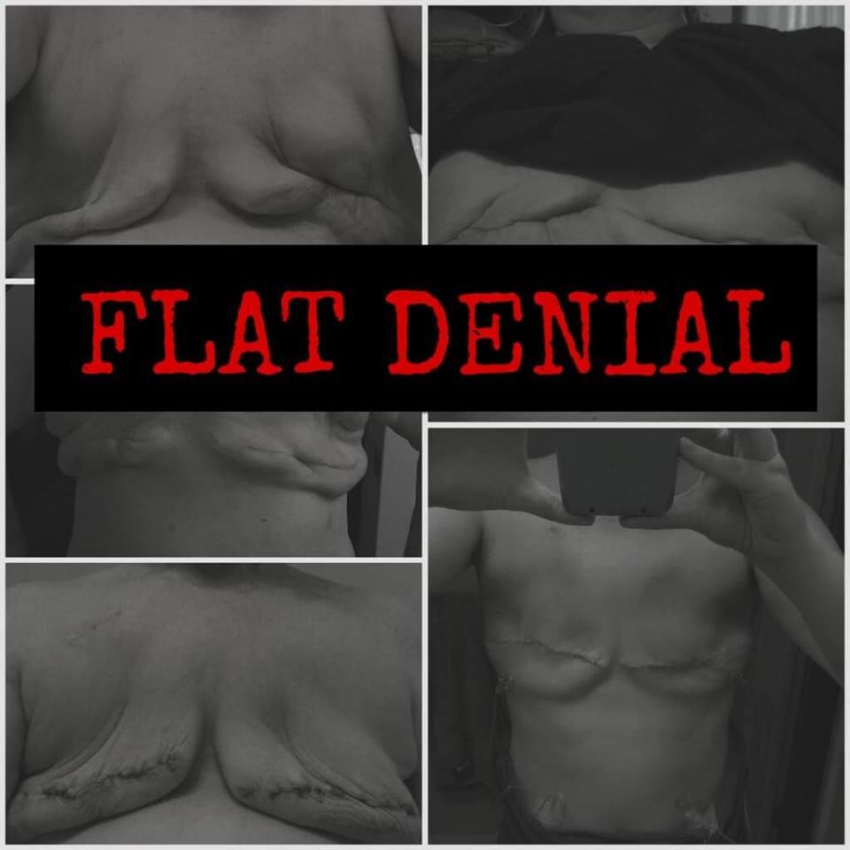Flat Denial with mastectomy photo background