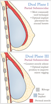 types of implant placement pectoral muscle
