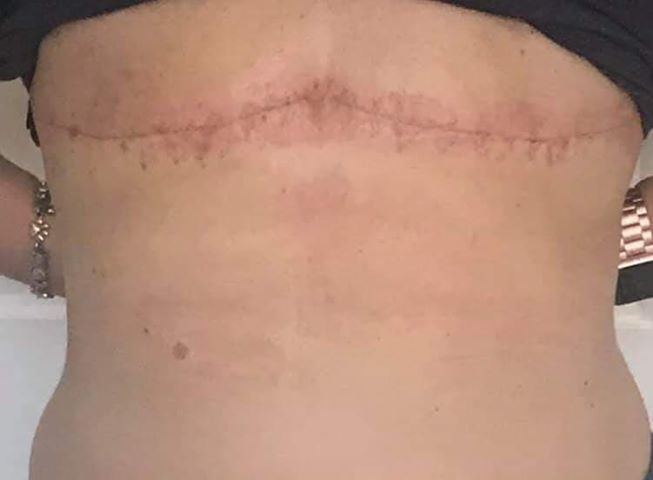 intentional flat denial after revision flat chest aesthetic flat closure