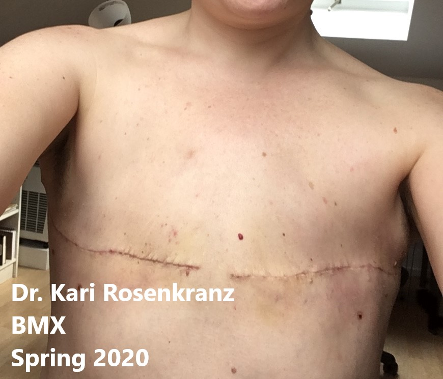going flat photos aesthetic flat closure after mastectomy smooth flat chest