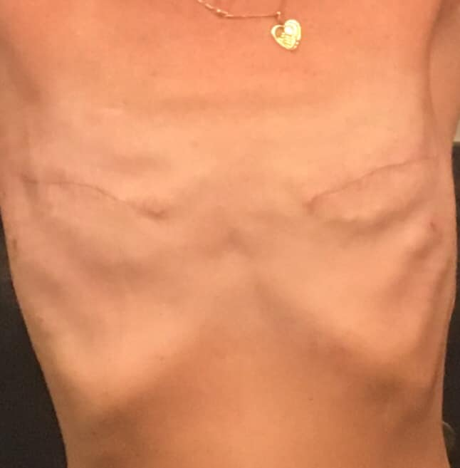going flat photos aesthetic flat closure revision after breast implant removal explant