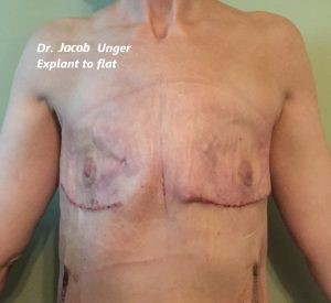 going flat photos aesthetic flat closure revision after breast implant removal nipple sparing explant