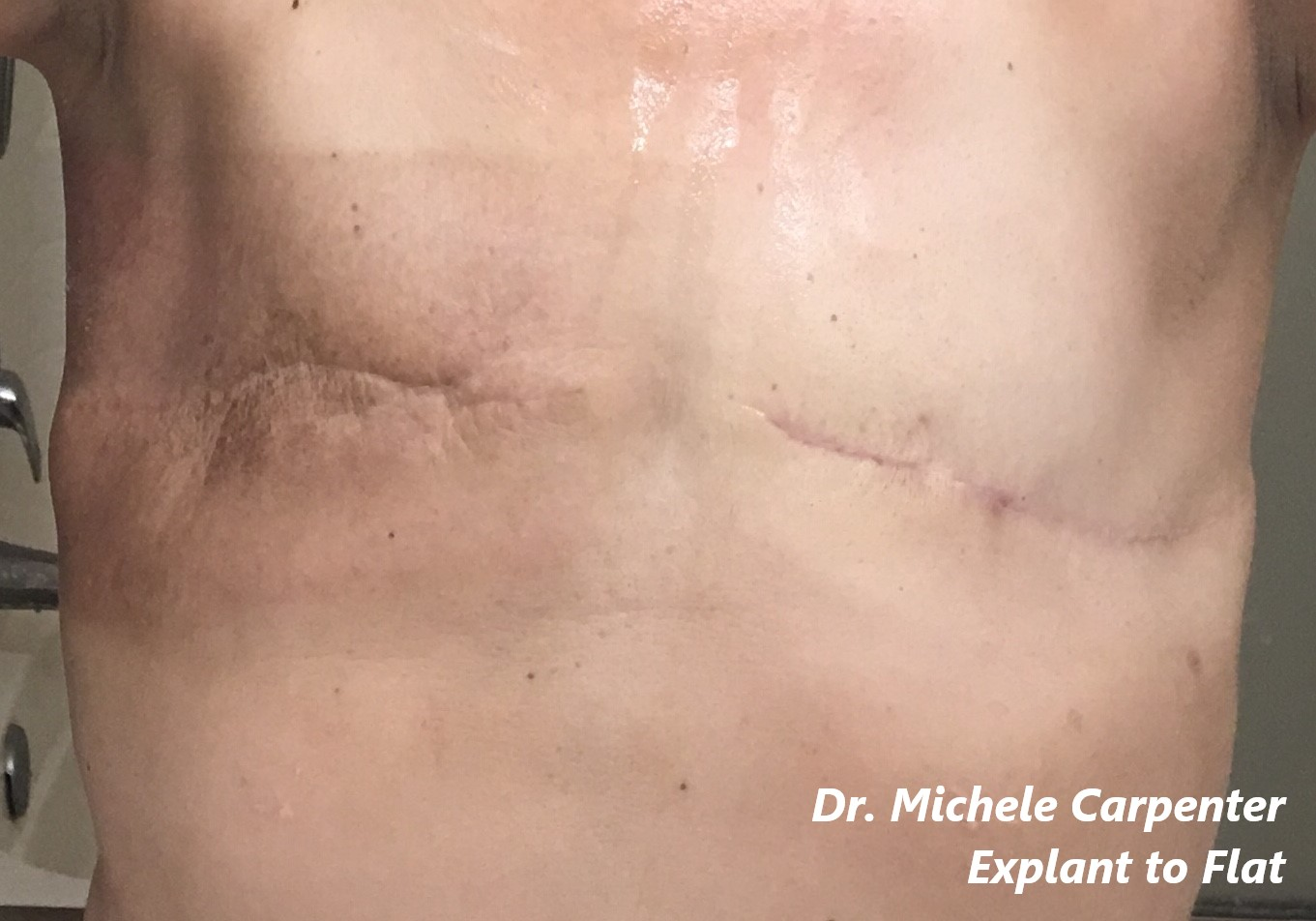 going flat photos aesthetic flat closure explant after mastectomy