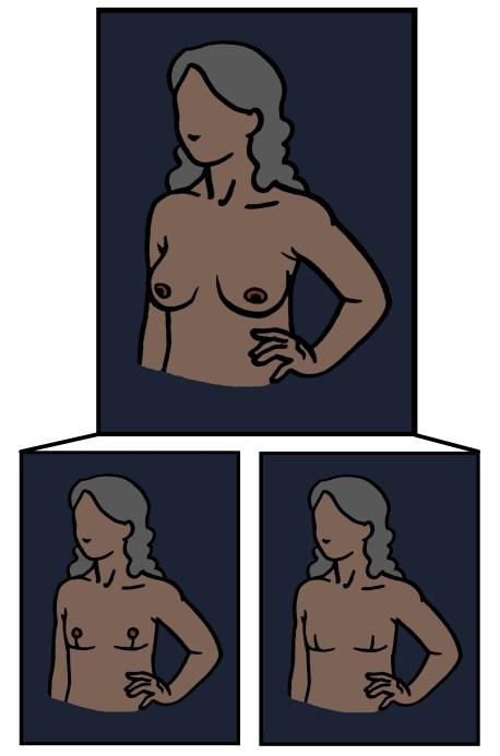 Goldilocks mastectomy aesthetic flat closure