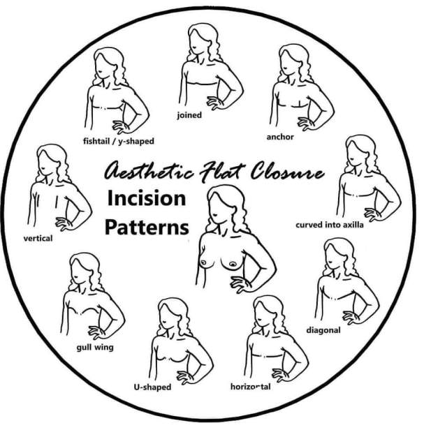 Aesthetic Flat Closure incision patterns
