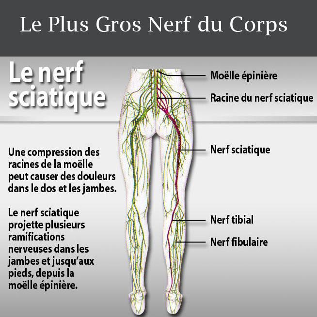 comment soigner une sciatique de la jambe