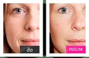 NOVASKIN - сыворотка с эффектом ботокса NOVASKIN