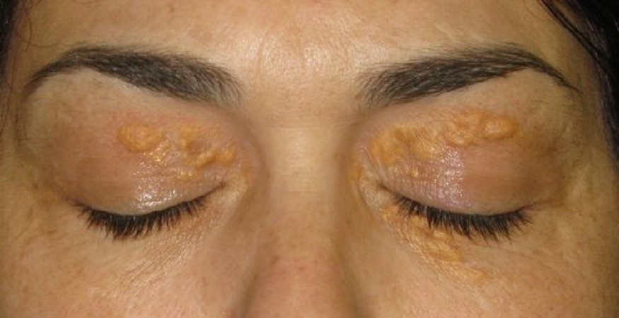 Ксантелазма: белые пятна вокруг глаз
