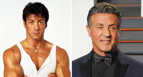 Знаменитые мужчины, которые стали заложниками пластической хирургии