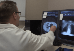 doctor examines lung x-rays