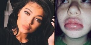 #Especial Mira aquí los 10 peores #KylieJennerChallenge de la historia (FOTOS+VIDEO)