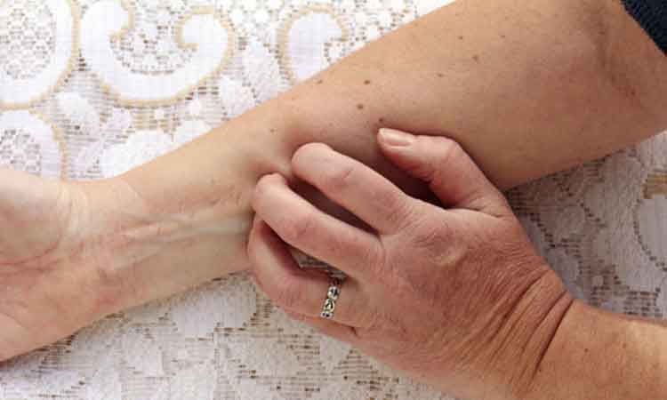 Skin diseases more common in elderly men: Study - NP News24