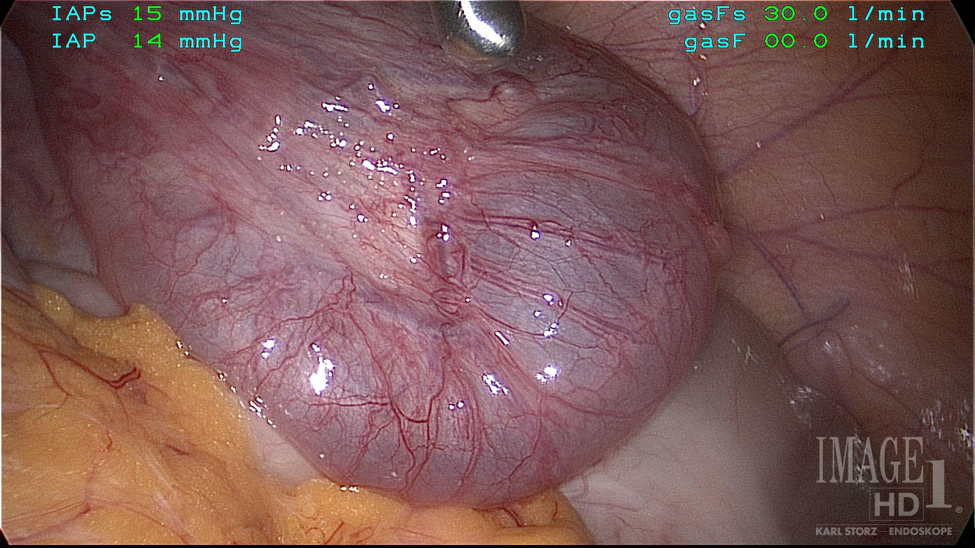 Laparoscopy Right hydrosalpinx