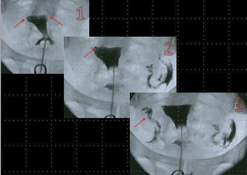 Opening blocked fallopian tubes
