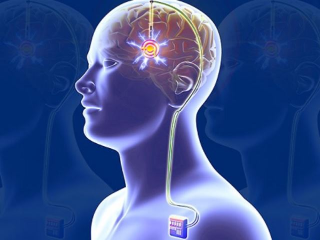 Deep Brain Stimulation Devices Market to Register Healthy Growth through 2025 – TechSci Research