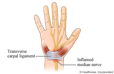 Carpal Tunnel Syndrome Care Instructions