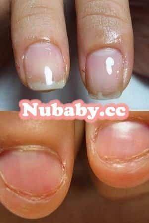 摳咬指甲-大拇指與中指嚴重甲床萎縮