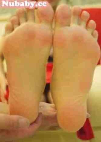 腳部保養-高跟鞋引起的厚繭與龜裂