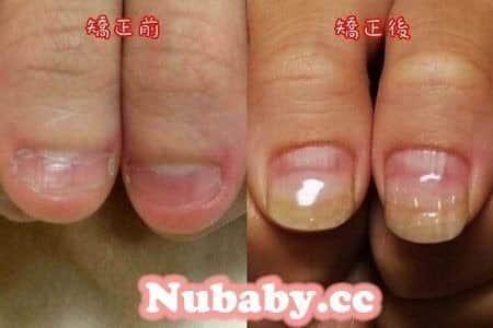問題指甲處理-拯救嚴重撕咬的手指