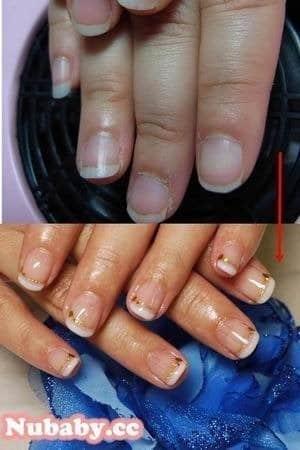 扇形甲矯正-讓寬指甲也能做法式指甲