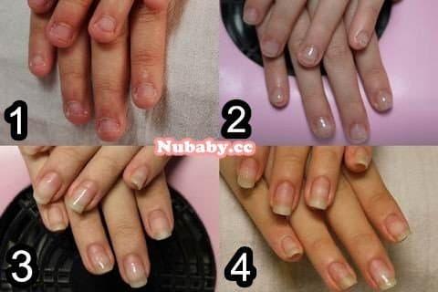 咬甲矯正-指緣發炎的超短指甲努力成果