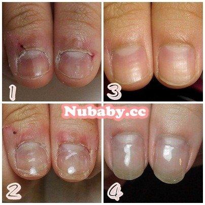 嚴重撕摳咬指甲-變形反黑的指甲變漂亮