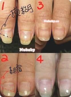 咬甲摳甲/指甲矯正/問題指甲處理