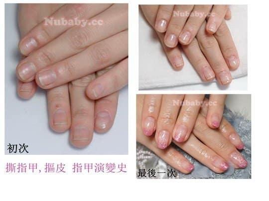 摳甲矯正-改善摳咬指甲與撕皮受傷