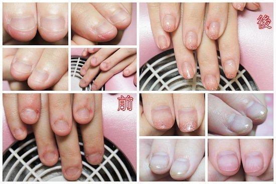 壓力大咬甲撕皮 指緣都是傷口的案例