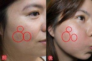 laser 2013122601 - 爛痘爛臉凹疤保養大作戰-終於可以上妝了