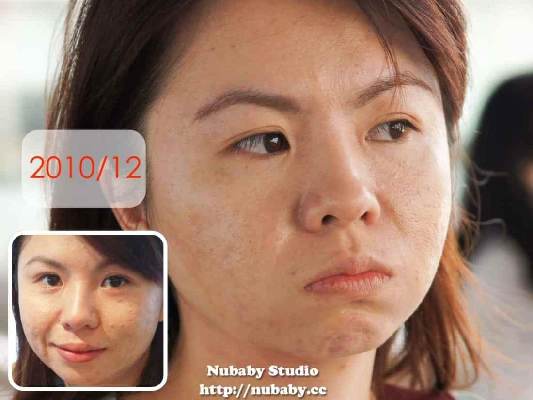 拯救痘痘肌-Peggy8年來的皮膚處理