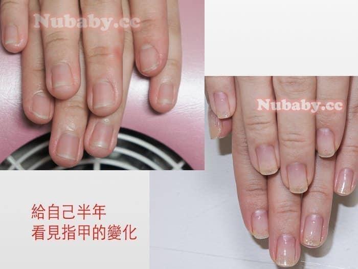 摳皮變形指甲矯正-國小老師指甲大變形