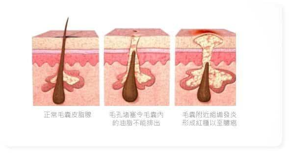 acnes-problem