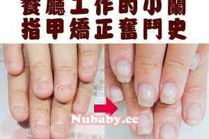 20160331 nail 1 - 餐飲業的指甲矯正-餐廳工作小蘭的奮鬥史
