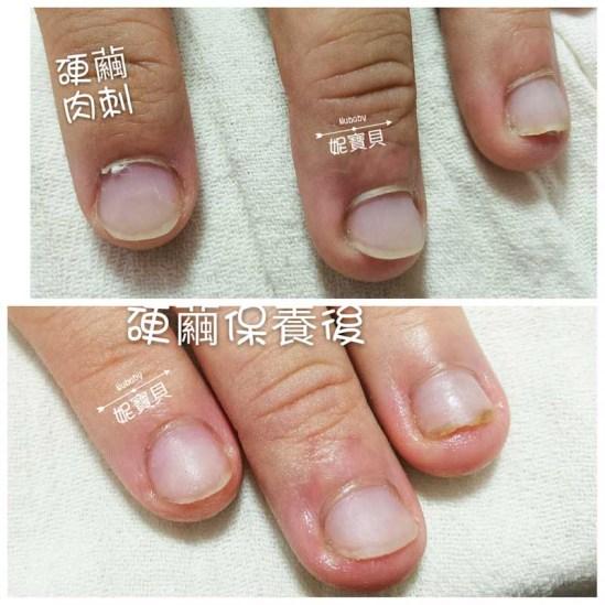 nail20170515 6 - 手部硬繭處理保養--矯正指甲的重點
