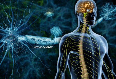 Multiple Sclerosis, MS