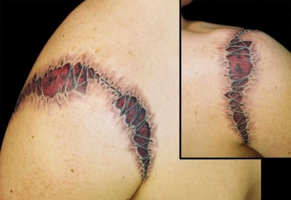 shoulderskinrip