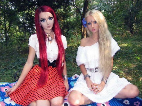 """Barbie doll Syndrome"", ένα ψυχιατρικό σύνδρομο που απασχολεί τους γιατρούς"
