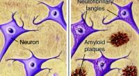 Σε ασθενείς με νόσο Αλτσχάιμερ, η πρωτεΐνη του β-αμυλοειδούς αναδιπλώνεται λανθασμένα λόγω παθολογικών αλλαγών, πολύ πριν εμφανιστούν τα πρώτα συμπτώματα της νόσου