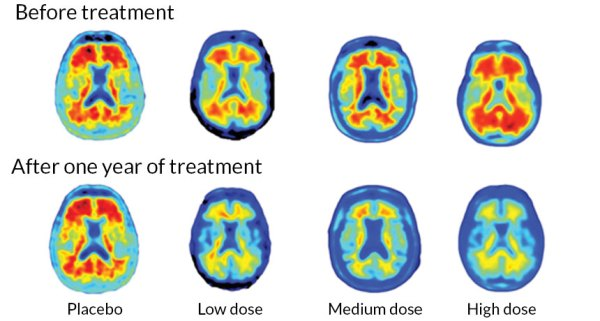 New Alzheimer's drug shows promise in small trial. Treatment reduced brain plaques, but effects on mental function not clear