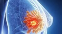 Το στρες προάγει τη μετάσταση του καρκίνου του μαστού